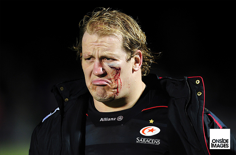 A battle-scarred Petrus Du Plessis of Saracens looks on after the match